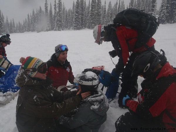 Broken Collarbone on Marmot Basin Ski Area